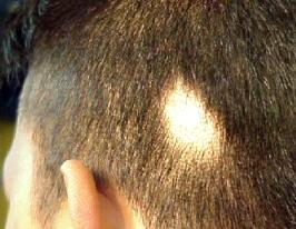 Маска алерана питание волос отзывы