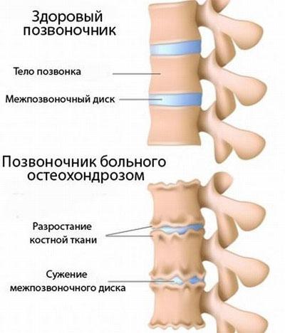 Витамины при шейном остеохондрозе