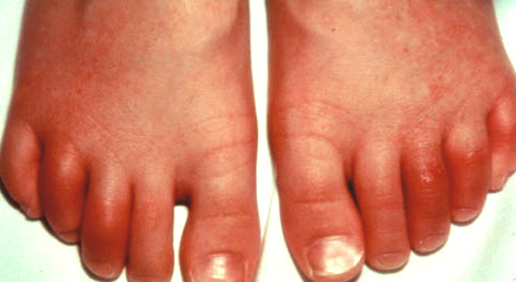 Воспаление сустава на пальцах ноги скованность мышц и суставов по утрам симптомы какой болезни