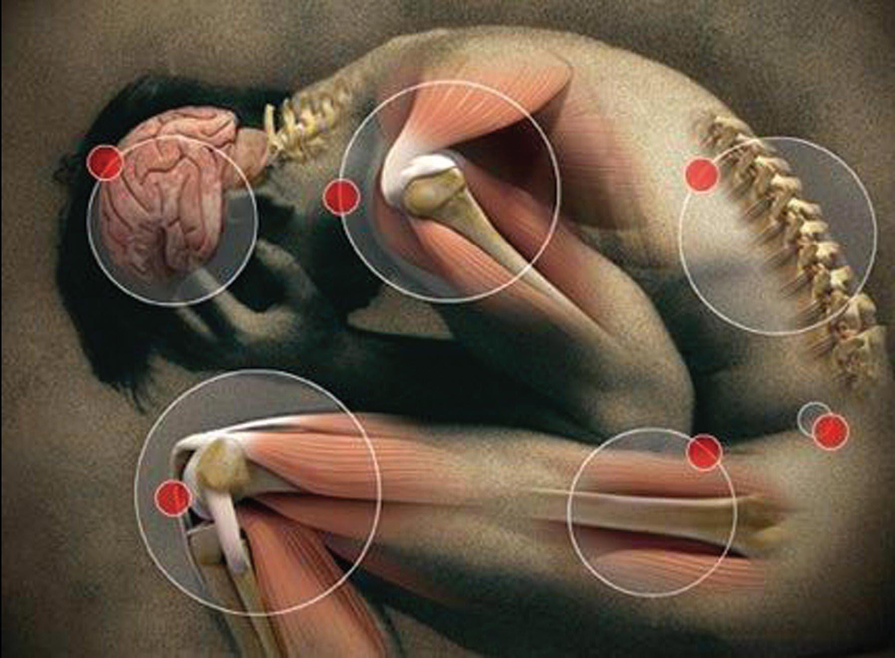Блуждающий артрит. Симптомы и лечение. | ОСТЕО-ВИТ. Витамины для ...
