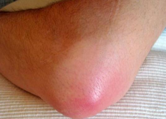 Бурсит: симптомы, методы лечения, профилактика